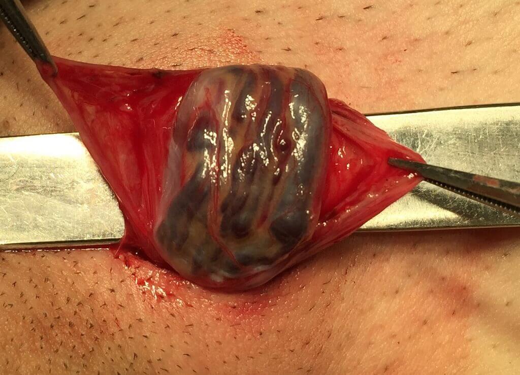 Удаление варикоцеле с помощью операции Мармара