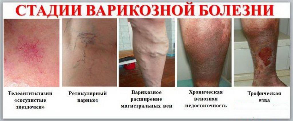Стадии варикоза вен ног