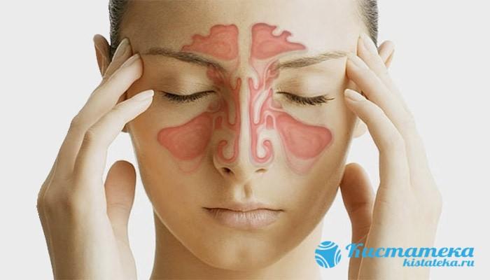Если вовремя не провести операцию, то происодит развитие мигреней из-за сдавливания нервны сплетений