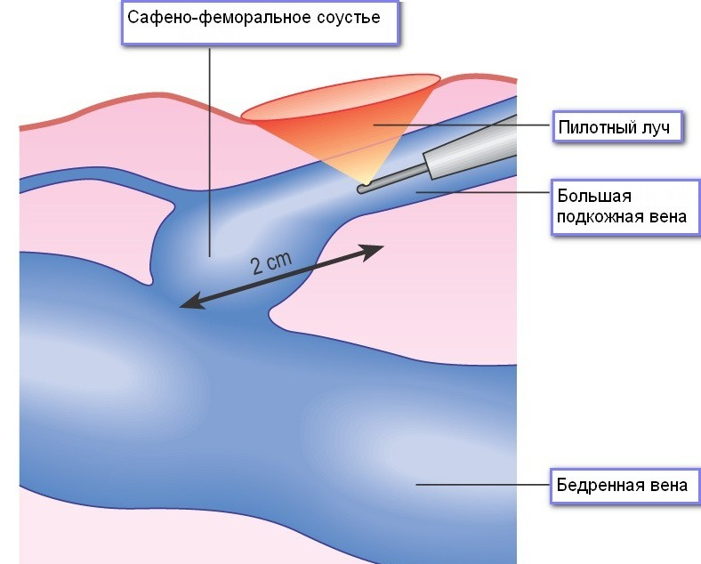 Проведение ЭВЛК варикозных сосудов