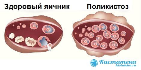 Первые признаки дисфункции органа проявляются уже в период полового созревания