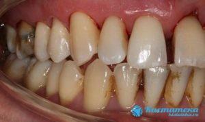 Отсутствие уода за зубами и полостью рта
