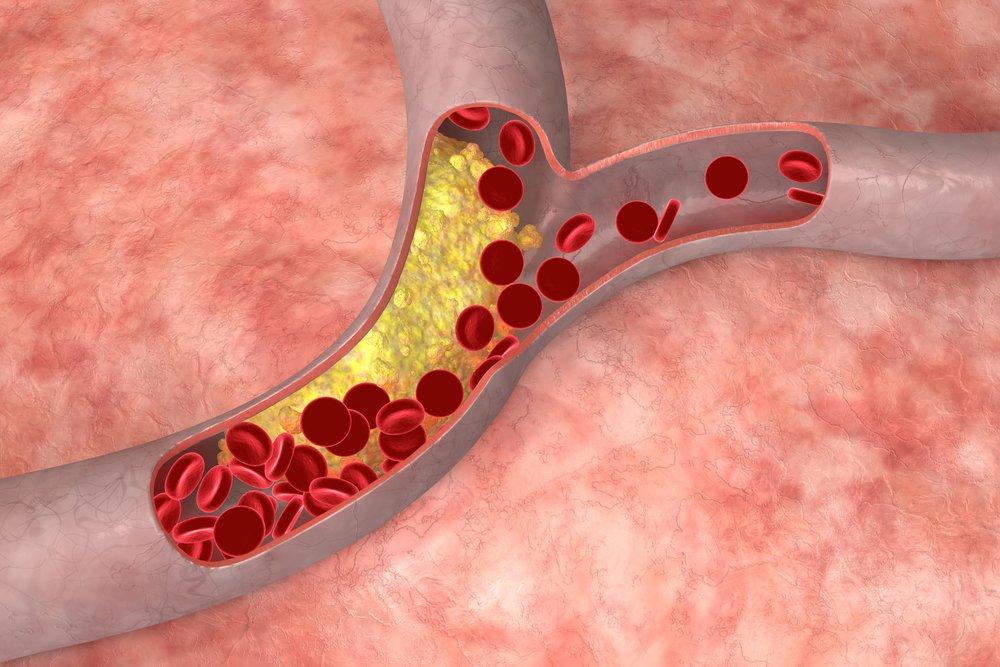 Если человек страдает от сердечно-сосудистых заболеваний, его норма общего холестерина снижена до 4,2