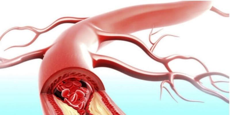 Злокачественная гипертензия