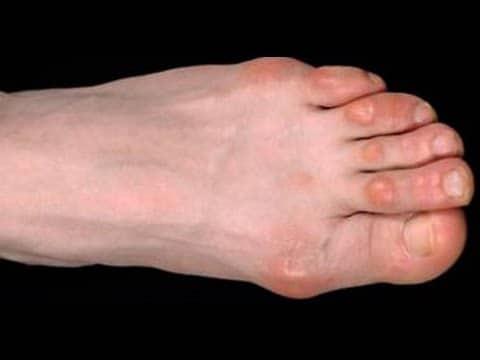 Мозоли портят внешний вид ноги
